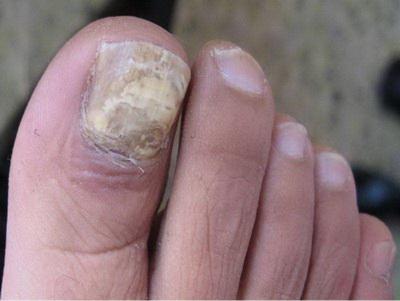 灰指甲的初期症状是怎样的